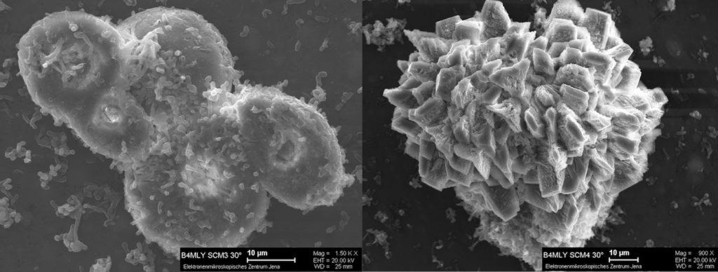 Rasterelektronenmikroskopie von Präzipitaten der Isolate Arthrobacter sulfonivorans SCM3 und Rhodococcus globerulus SCM4